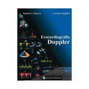 Ecocardiografia Doppler